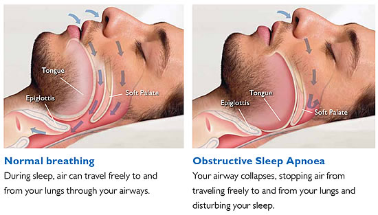 SNORING / SLEEP APNEA APPLIANCES